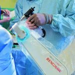 てんかん手術を大幅時間短縮…脳神経疾患の治療にロボット・AI実用化へ