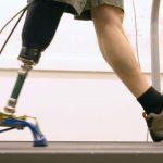 ロボット義足スタートアップ「HuMoTech」障がい者にフィットする義足を目指す