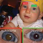 赤ちゃんの白色瞳孔を察知...重病を病院より早期発見できるAIアプリ登場