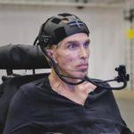 世界初のサイボーグ化に挑む英ロボット工学者×インテル「進捗は成功的」